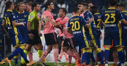 Tropiezo de la Juventus antes de medirse al Barça; preocupantes bajas en defensa para los de Pirlo