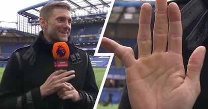Ex-Chelsea goalkeeper Rob Green shows horrific bent finger, blames Jimmy Floyd-Hasselbaink for it